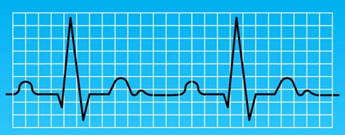 ЭКГ является основополагающим исследованием для раннего обнаружения заболеваний сердечно-сосудистой системы