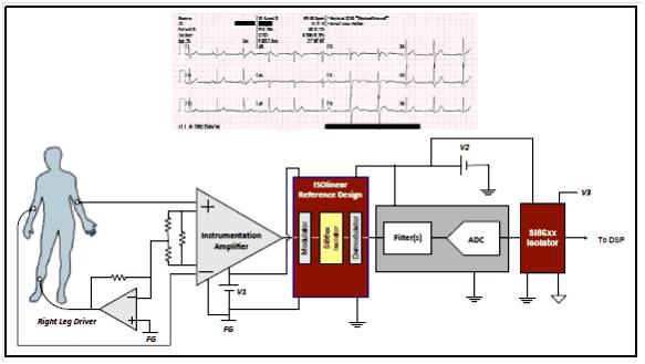 Пример использования микросхемы цифрового изолятора Si86xx в электрокардиографе(ЭКГ) для защиты пациента от опасных токов утечки.